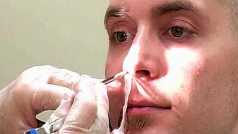 Nosebleeds (Epistaxis) Treatment