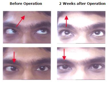Oculoplasty Surgery