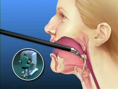 Oral Cancer - Surgical