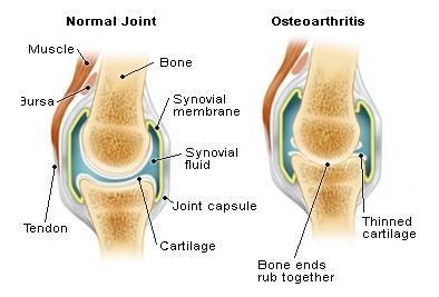 Osteoarthritis - Stem Cell Treatment