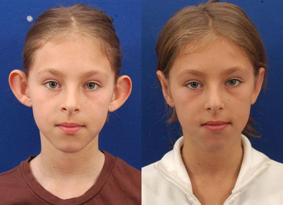 Pediatric Otoplasty Surgery