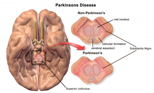 Parkinsons Disease - Stem Cell Treatment