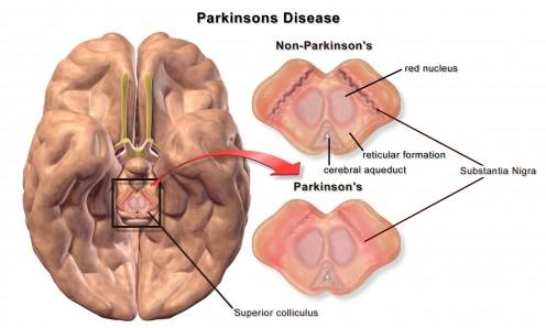 Parkinsons Disease - Stem Cell Treatment