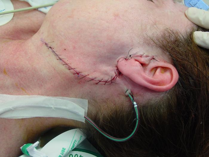 Parotidectomy Surgery