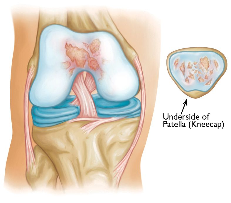 Patello Femoral Replacement
