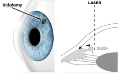 Laser Peripheral Iridotomy Surgery