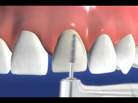 Porcelain Veneers procedure