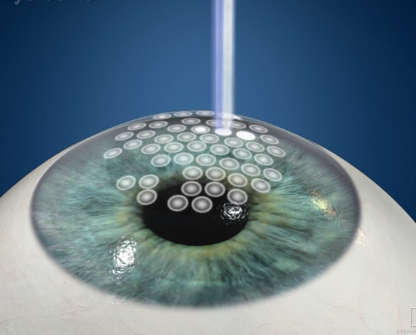 Photorefractive Keratectomy Surgery