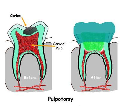 Pulpotomy Procedure
