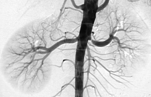 Renal Angiogram Procedure