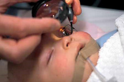 Retinoblastoma (RB) Treatment