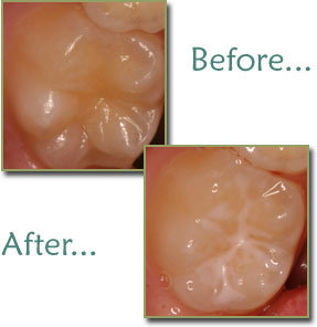 Dental Sealants - Pit and Fissure Sealant Treatment