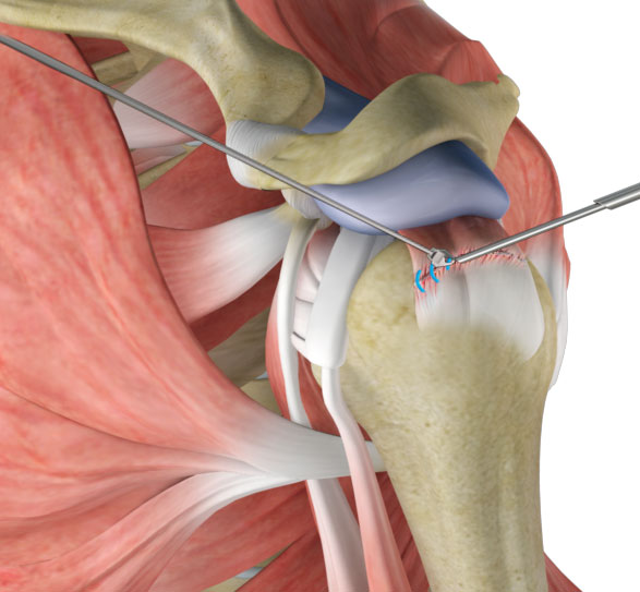 Repair of Shoulder Rotator Cuff Surgery