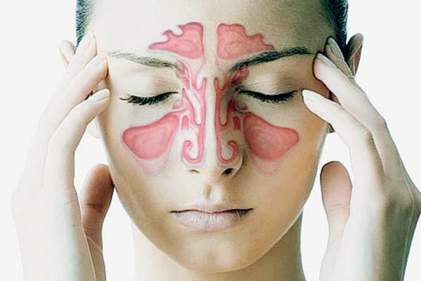 Sinusitis (Sinus Infection) Treatment