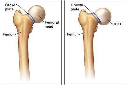 Slipped Capital Femoral Epiphysis (SCFE) Treatment