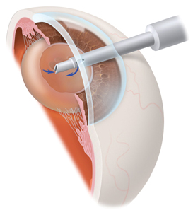 Small Incision Cataract Surgery
