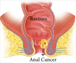 Small Intestine Cancer Treatment