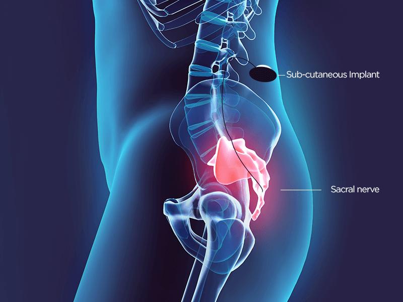 SNS - Sacral Nerve Stimulation