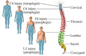 Spinal Cord Injury - Stem Cell Treatment