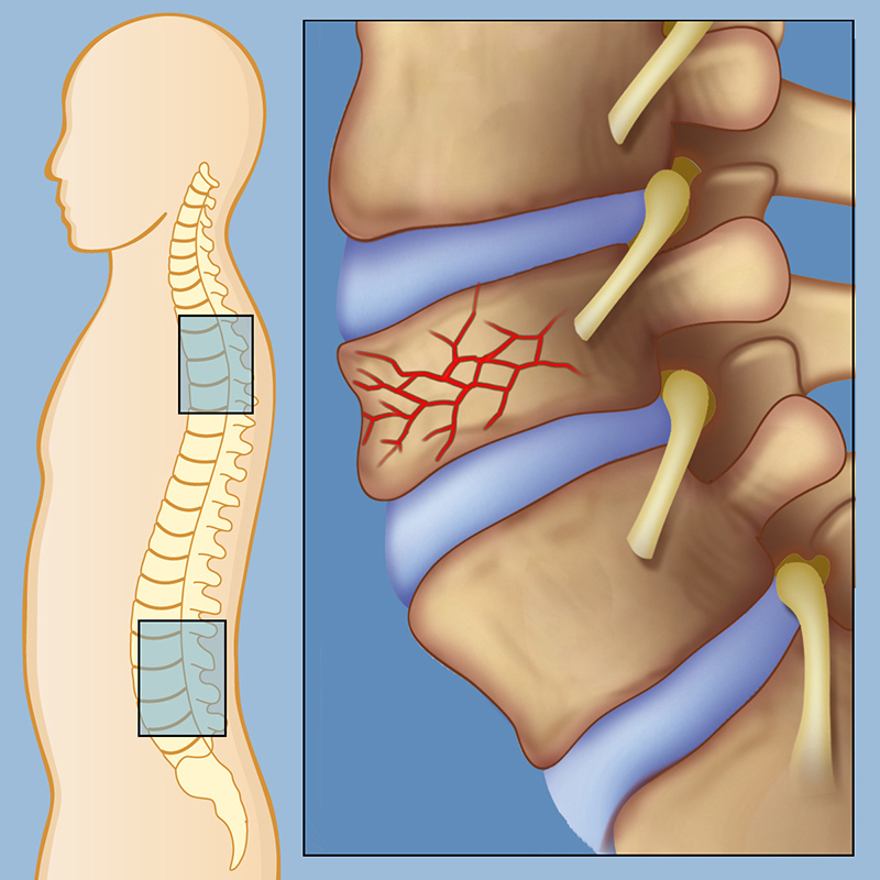 Congenital Spine Cord Malformations Treatment