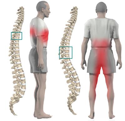 Spine Tumour Surgery
