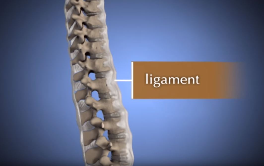 Comprehensive Myelopathy - Spinal Cord Surgery