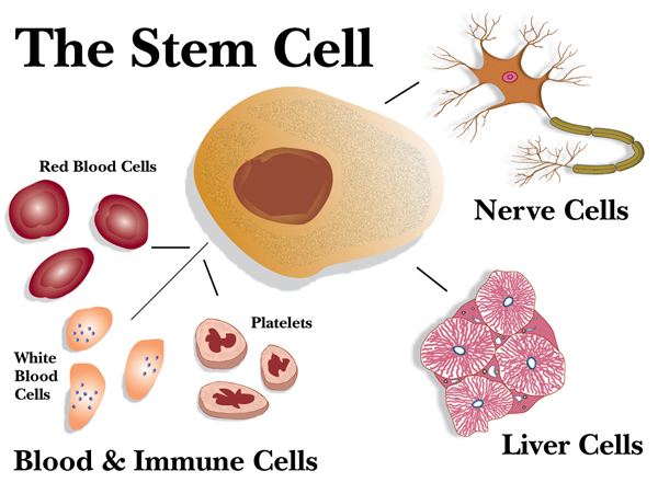 Autologous Stem Cell Transplant for Lymphoma