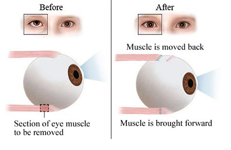 Strabismus Surgery - Eye Muscle Surgery