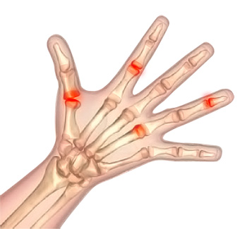 Synovectomy of Hand