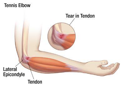 Lateral Epicondyle Release (Tennis Elbow)