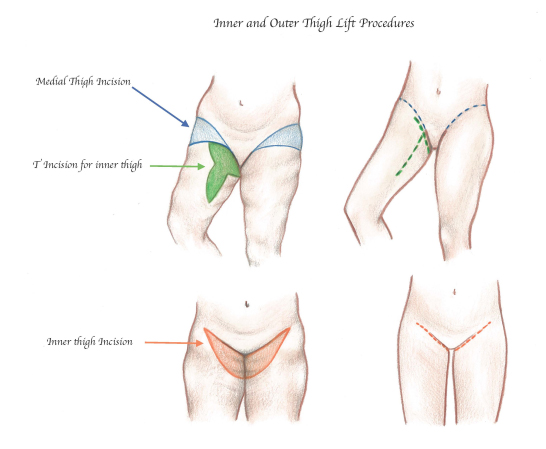 Thigh Lift Surgery