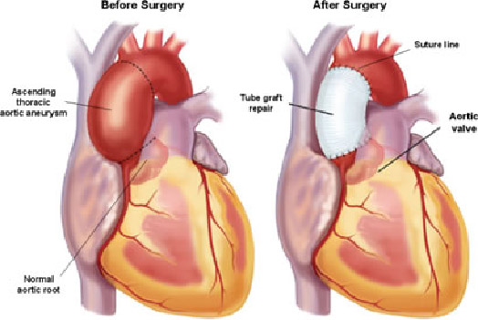 Thoracic Aortic Aneurysm Treatment