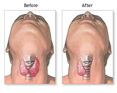 Thyroidectomy Surgery