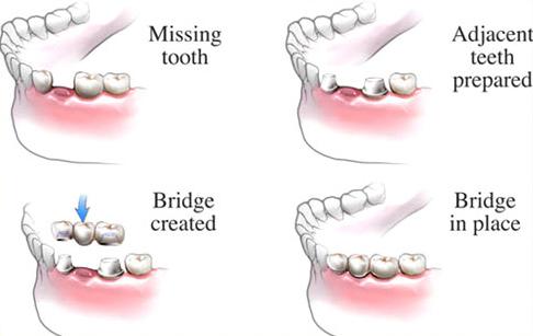 Tooth Bridge procedure