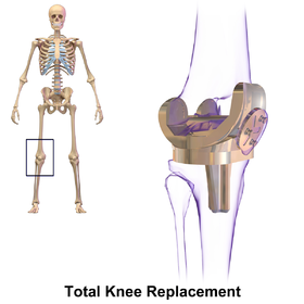 High Flex Knee Replacement Surgery