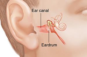 Tympanoplasty - Eardrum Repair Surgery