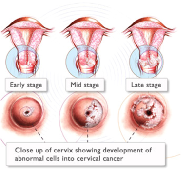 Vaginal Cancer Treatment