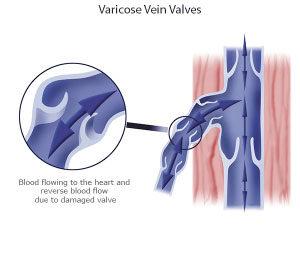 Varicocele (Scrotum Varicose Veins) Treatment