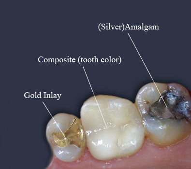 Tooth Colored Filling - White Fillings Treatment