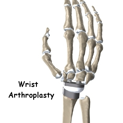 Wrist Joint Replacement (Wrist Arthroplasty) Surgery